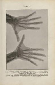 Foto: Prof. Dr. Eduard Schiff's Institut für Radiographie und Radiotherapie, Wien